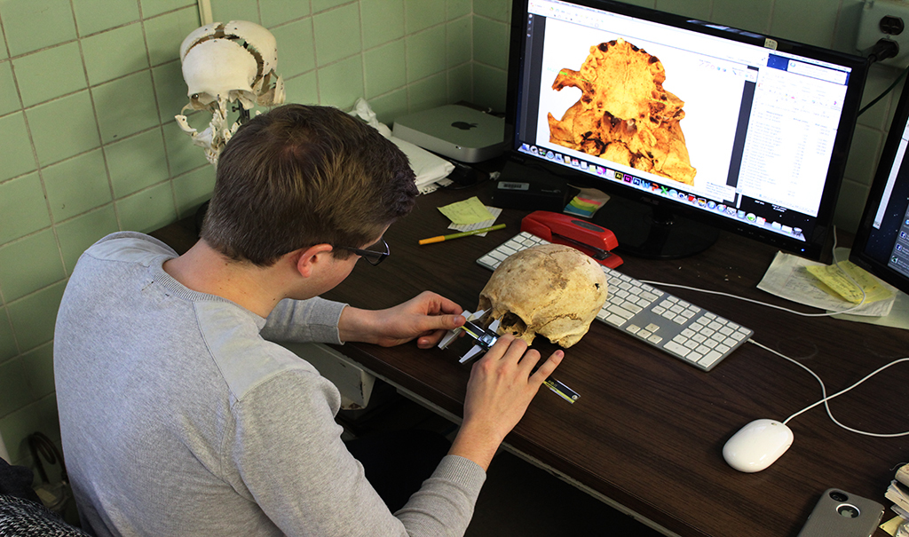 picture of a man measuring the distance between eyes on a skull